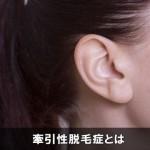 女性の髪の生え際が薄毛や抜け毛になる原因は牽引性脱毛症!