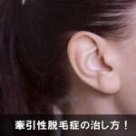 女性の抜け毛で注意したい牽引性脱毛症の治し方と予防対策!