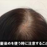 白髪染めを使う時に注意したい事や頻度とは!髪や頭皮を守る!